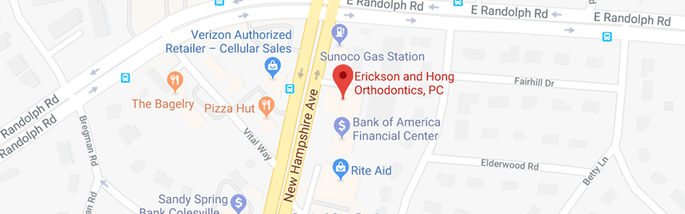 Map The Silver Spring Orthodontist Silver Spring and Olney MD